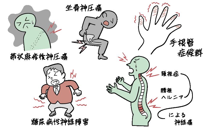 神経因性疼痛の代表例をイラストにして紹介します。